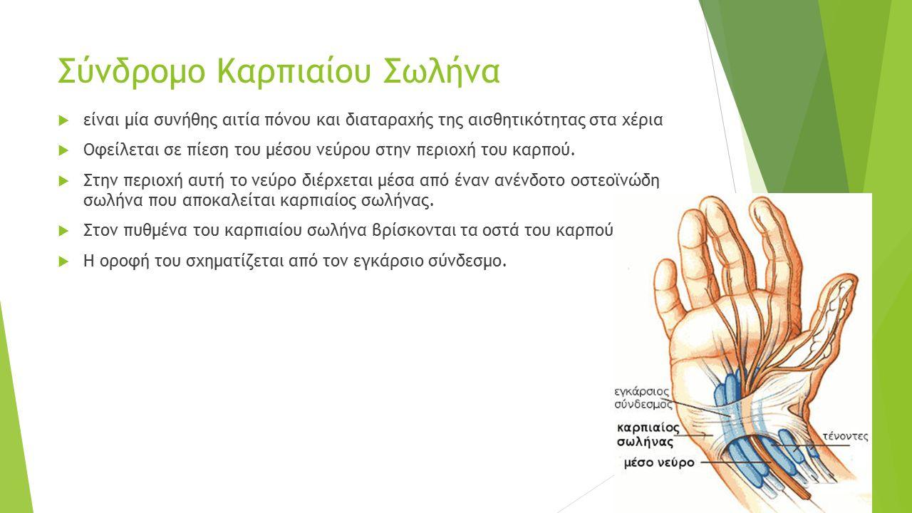 Σύνδροµο Καρπιαίου Σωλήνα  είναι µία συνήθης αιτία πόνου και διαταραχής της αισθητικότητας στα χέρια  Οφείλεται σε πίεση του µέσου νεύρου στην περιο