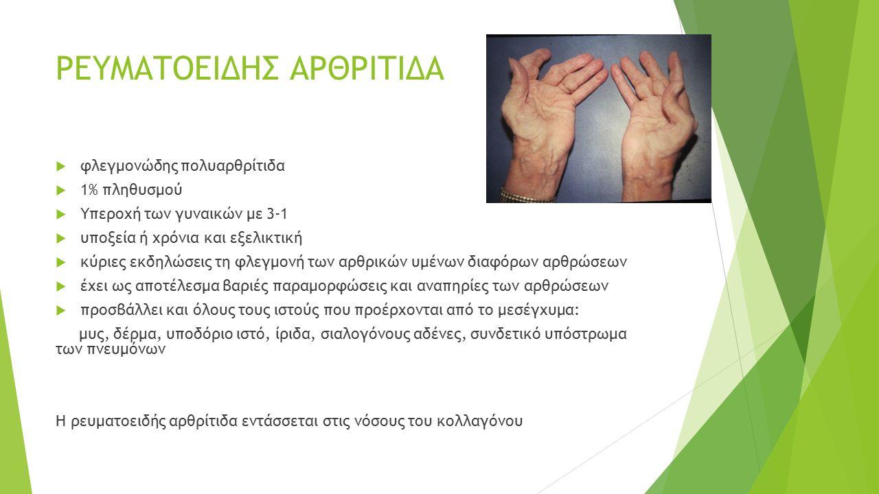 Συστηματική προοδευτική σκλήρυνση (σκληρόδερμα)  γενικευμένη διαταραχή του συνδετικού ιστού  έντονη ίνωση του δέρματος, των αγγείων, του αρθρικού υμένα, των σκελετικών μυών και ορισμένων εσωτερικών οργάνων  παρουσιάζεται συνήθως στην ηλικία των 30-50 ετών  Η συχνότητα προσβολής μεταξύ γυναικών και ανδρών ποικίλλει από 3:1 έως 8:1  Συνήθως υπάρχει το φαινόμενο Raynaud, το οποίο μπορεί να προηγείται των άλλων κλινικών εκδηλώσεων μήνες ή και χρόνια ακόμη.