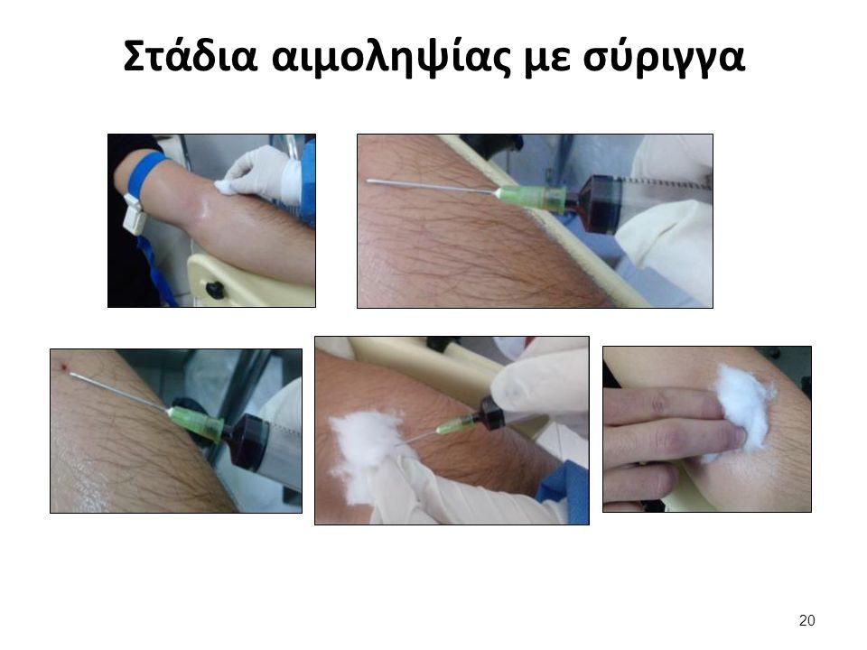 Στάδια αιμοληψίας με σύριγγα 20