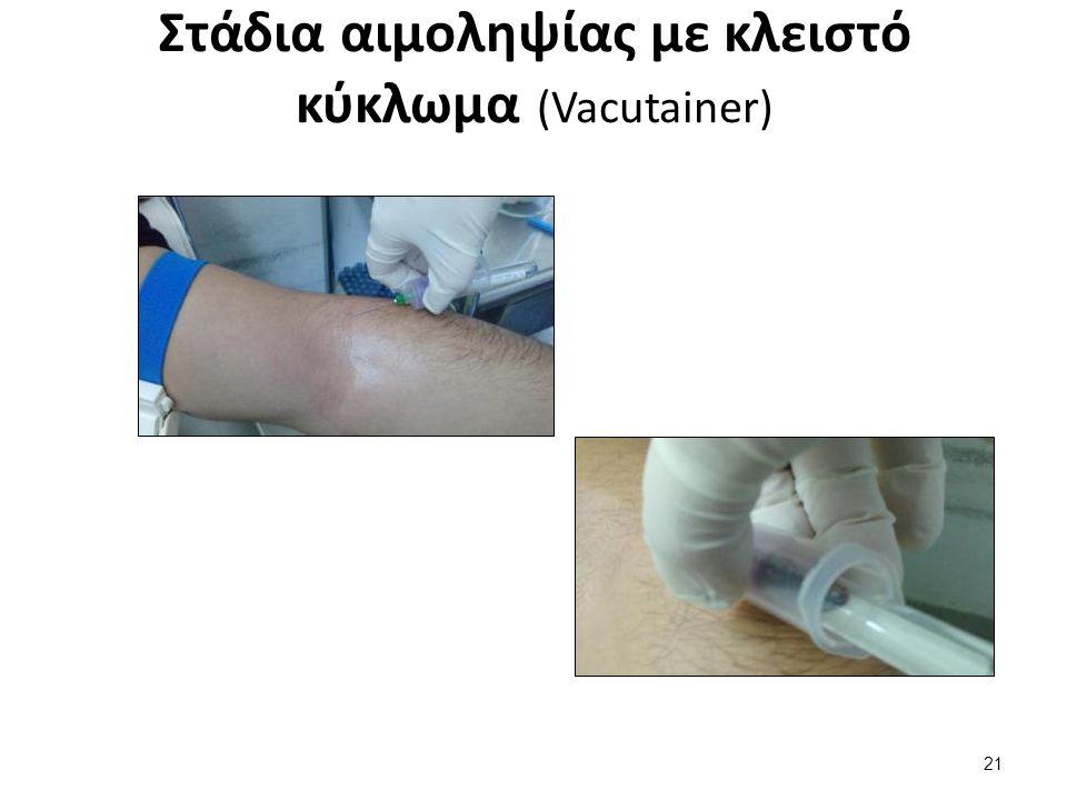 Στάδια αιμοληψίας με κλειστό κύκλωμα (Vacutainer) 21