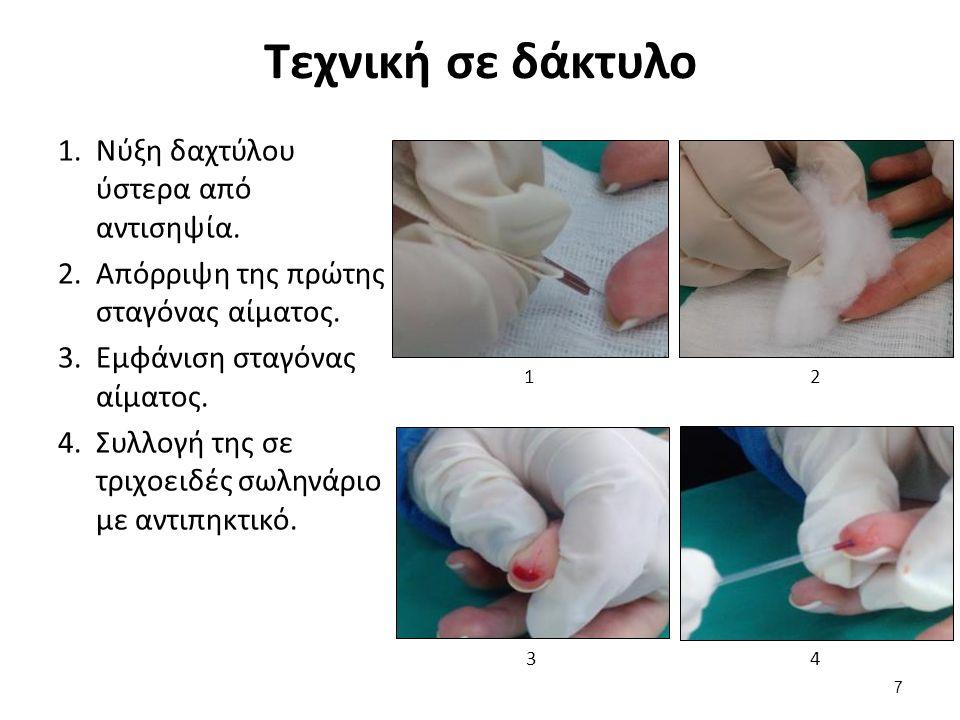 Τεχνική σε δάκτυλο 1.Νύξη δαχτύλου ύστερα από αντισηψία.