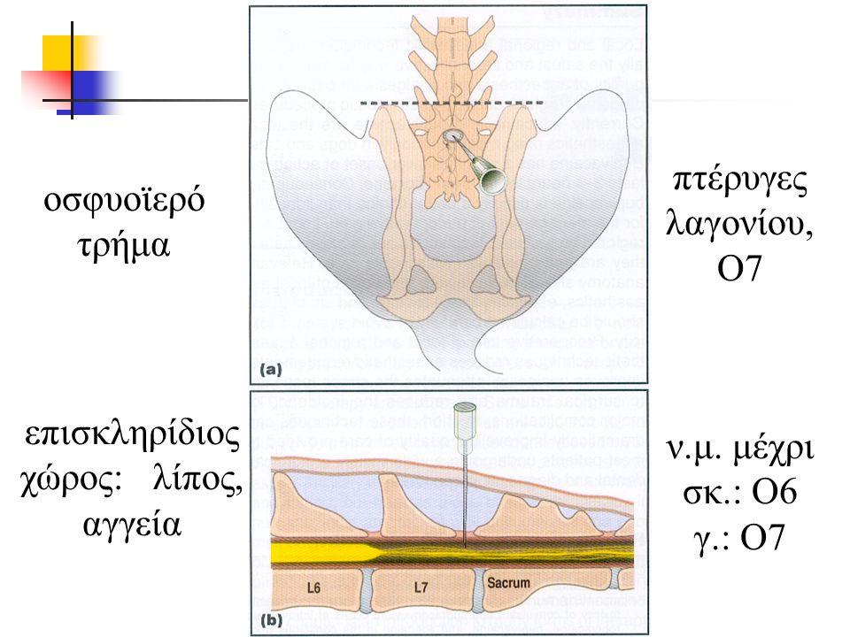 ν.μ. μέχρι σκ.: Ο6 γ.: Ο7 οσφυοϊερό τρήμα επισκληρίδιος χώρος: λίπος, αγγεία πτέρυγες λαγονίου, Ο7