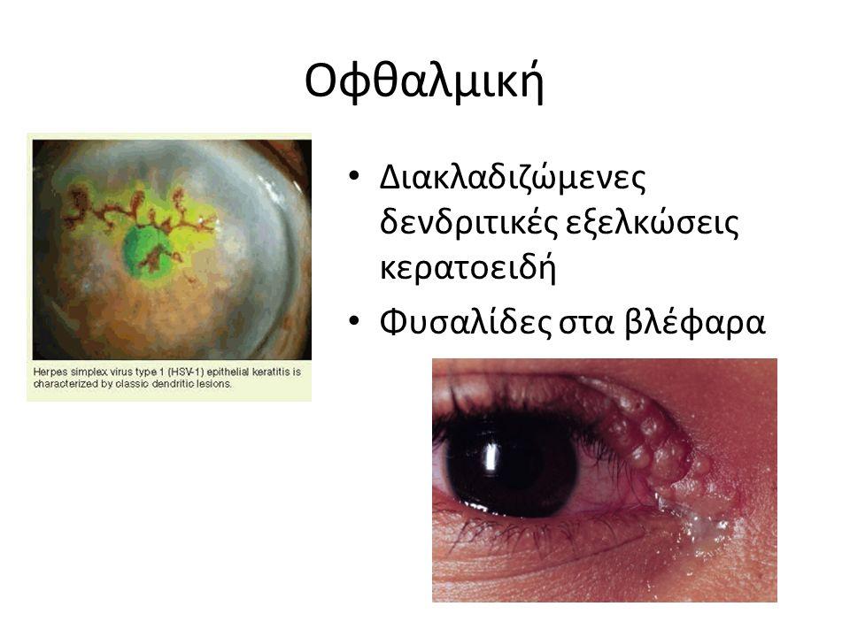 Οφθαλμική Διακλαδιζώμενες δενδριτικές εξελκώσεις κερατοειδή Φυσαλίδες στα βλέφαρα