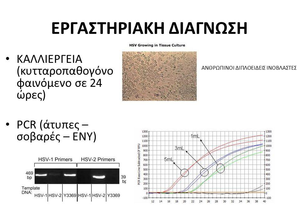 ΕΡΓΑΣΤΗΡΙΑΚΗ ΔΙΑΓΝΩΣΗ ΚΑΛΛΙΕΡΓΕΙΑ (κυτταροπαθογόνο φαινόμενο σε 24 ώρες) PCR (άτυπες – σοβαρές – ΕΝΥ) ΑΝΘΡΩΠΙΝΟΙ ΔΙΠΛΟΕΙΔΕΙΣ ΙΝΟΒΛΑΣΤΕΣ