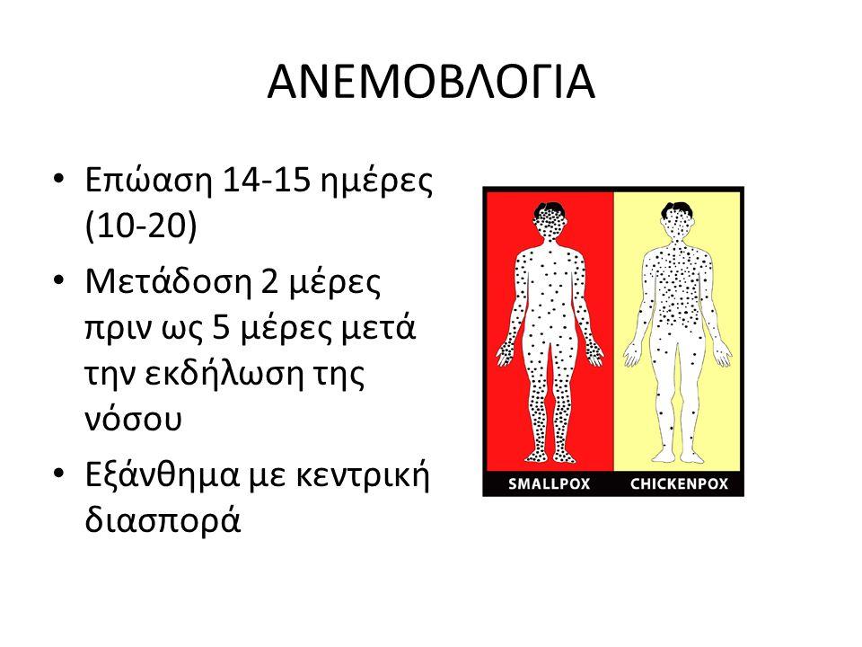 ΑΝΕΜΟΒΛΟΓΙΑ Επώαση 14-15 ημέρες (10-20) Μετάδοση 2 μέρες πριν ως 5 μέρες μετά την εκδήλωση της νόσου Εξάνθημα με κεντρική διασπορά