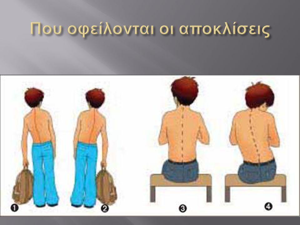  Παθολογικά, κληρονομικά αίτια  Έλλειψη άσκησης του μυϊκού συστήματος  Κακή στάση του σώματος στην καθιστή ή την όρθια θέση ( π.