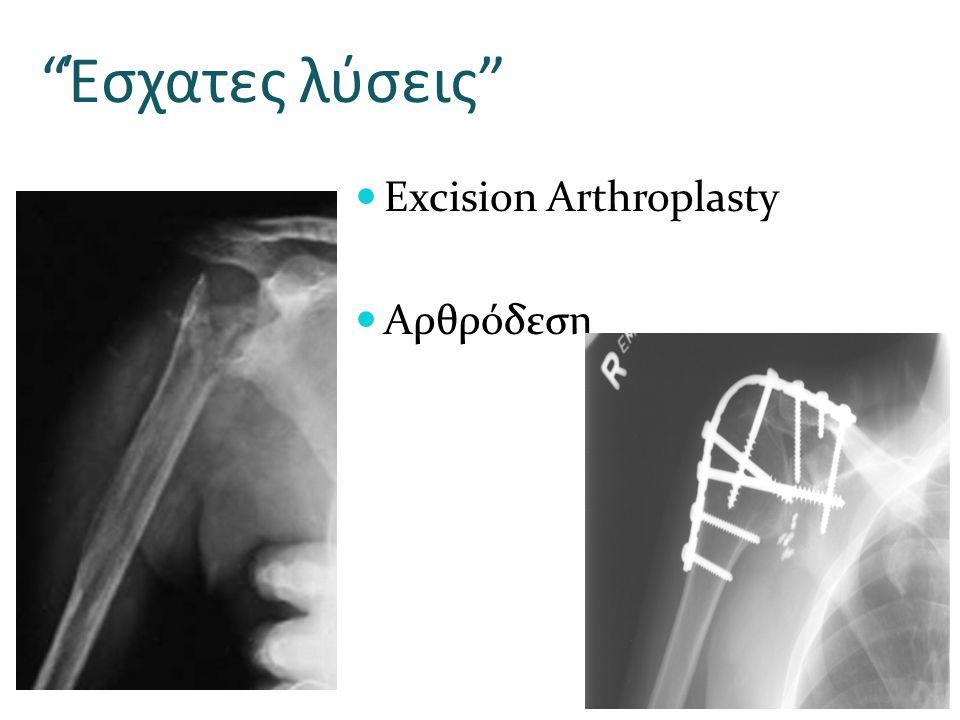 """""""Έσχατες λύσεις"""" Excision Arthroplasty Αρθρόδεση"""