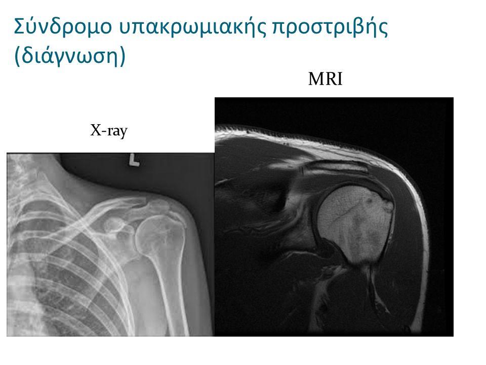 X-ray MRI Σύνδρομο υπακρωμιακής προστριβής (διάγνωση)