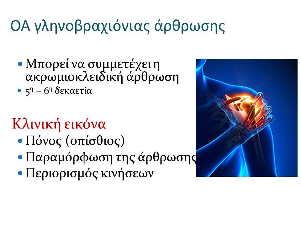 ΟΑ γληνοβραχιόνιας άρθρωσης Μπορεί να συμμετέχει η ακρωμιοκλειδική άρθρωση 5 η – 6 η δεκαετία Κλινική εικόνα Πόνος (οπίσθιος) Παραμόρφωση της άρθρωσης