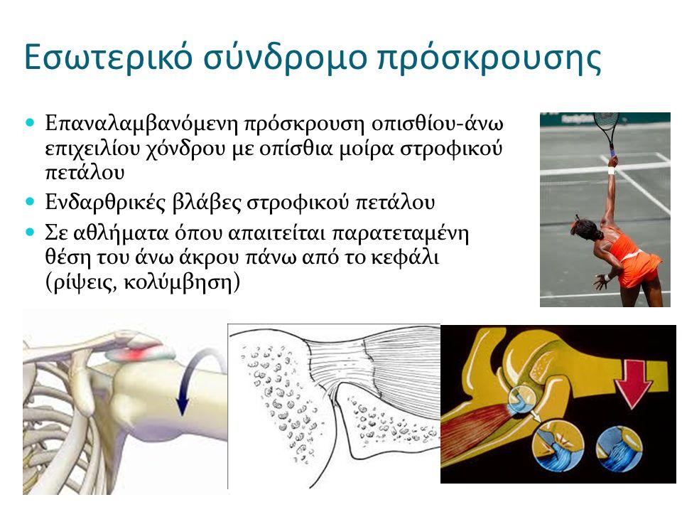 Εσωτερικό σύνδρομο πρόσκρουσης Επαναλαμβανόμενη πρόσκρουση οπισθίου-άνω επιχειλίου χόνδρου με οπίσθια μοίρα στροφικού πετάλου Ενδαρθρικές βλάβες στροφ