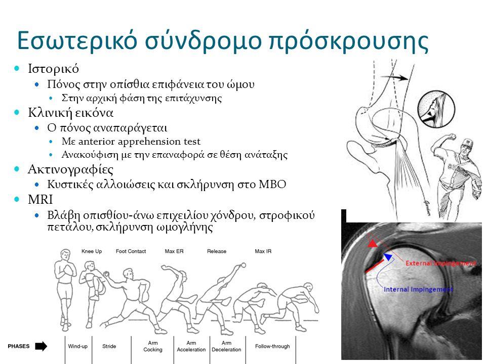 Εσωτερικό σύνδρομο πρόσκρουσης Ιστορικό Πόνος στην οπίσθια επιφάνεια του ώμου Στην αρχική φάση της επιτάχυνσης Κλινική εικόνα Ο πόνος αναπαράγεται Με