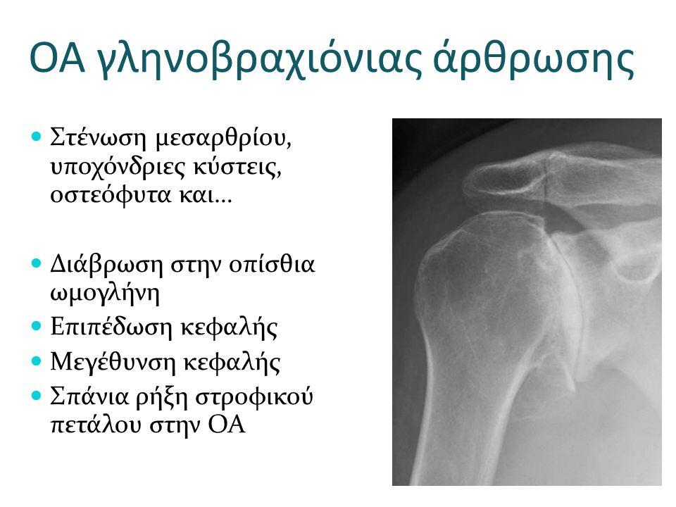 ΟΑ γληνοβραχιόνιας άρθρωσης Στένωση μεσαρθρίου, υποχόνδριες κύστεις, οστεόφυτα και… Διάβρωση στην οπίσθια ωμογλήνη Επιπέδωση κεφαλής Μεγέθυνση κεφαλής