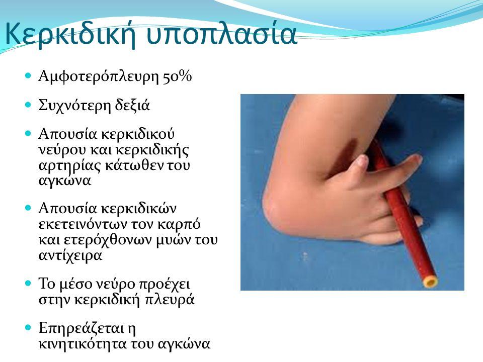 Aμφοτερόπλευρη 50% Συχνότερη δεξιά Απουσία κερκιδικού νεύρου και κερκιδικής αρτηρίας κάτωθεν του αγκώνα Απουσία κερκιδικών εκετεινόντων τον καρπό και