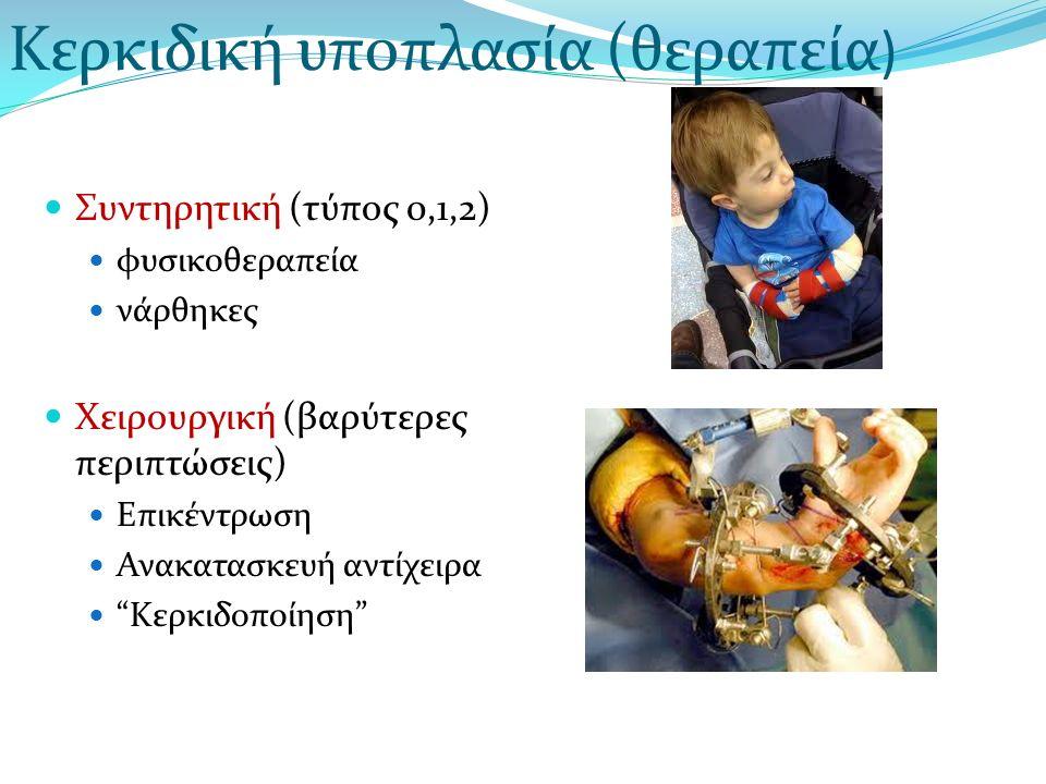 """Συντηρητική (τύπος 0,1,2) φυσικοθεραπεία νάρθηκες Χειρουργική (βαρύτερες περιπτώσεις) Επικέντρωση Ανακατασκευή αντίχειρα """"Κερκιδοποίηση"""" Κερκιδική υπο"""