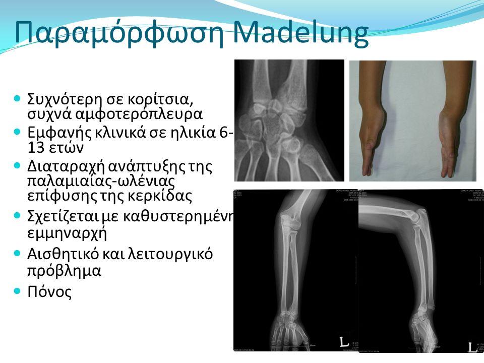 Madelung deformity Συχνότερη σε κορίτσια, συχνά αμφοτερόπλευρα Εμφανής κλινικά σε ηλικία 6- 13 ετών Διαταραχή ανάπτυξης της παλαμιαίας-ωλένιας επίφυση