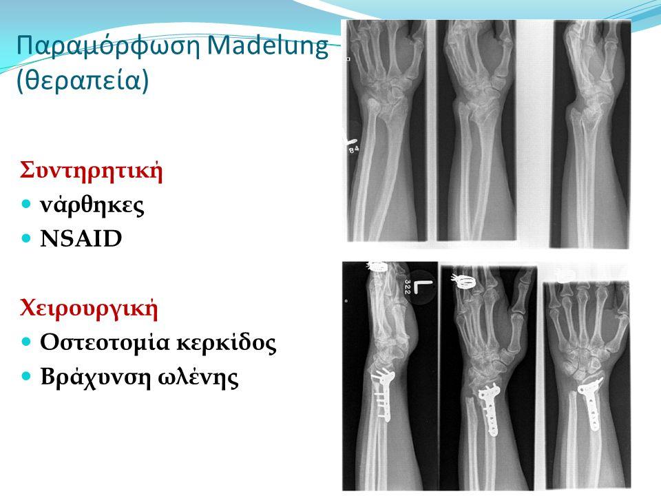 Παραμόρφωση Madelung (θεραπεία) Συντηρητική νάρθηκες NSAID Χειρουργική Οστεοτομία κερκίδος Βράχυνση ωλένης