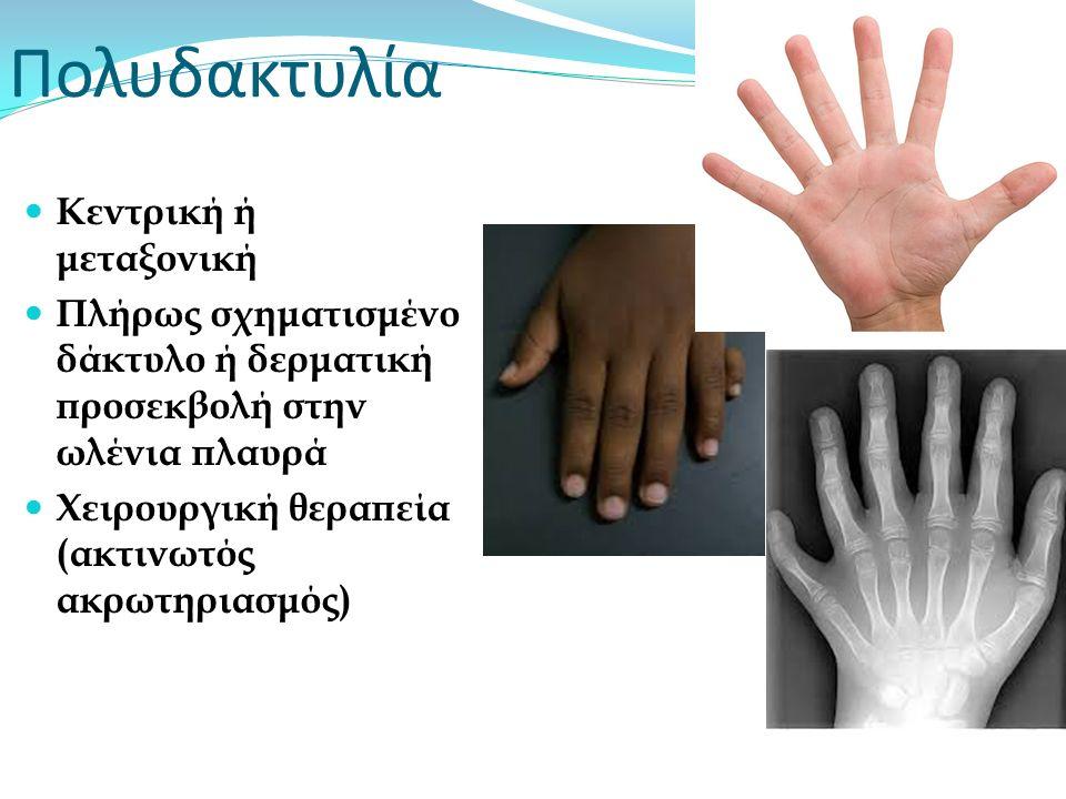Πολυδακτυλία Κεντρική ή μεταξονική Πλήρως σχηματισμένο δάκτυλο ή δερματική προσεκβολή στην ωλένια πλαυρά Χειρουργική θεραπεία (ακτινωτός ακρωτηριασμός
