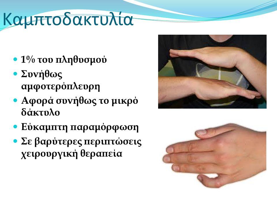 Καμπτοδακτυλία 1% του πληθυσμού Συνήθως αμφοτερόπλευρη Αφορά συνήθως το μικρό δάκτυλο Εύκαμπτη παραμόρφωση Σε βαρύτερες περιπτώσεις χειρουργική θεραπε