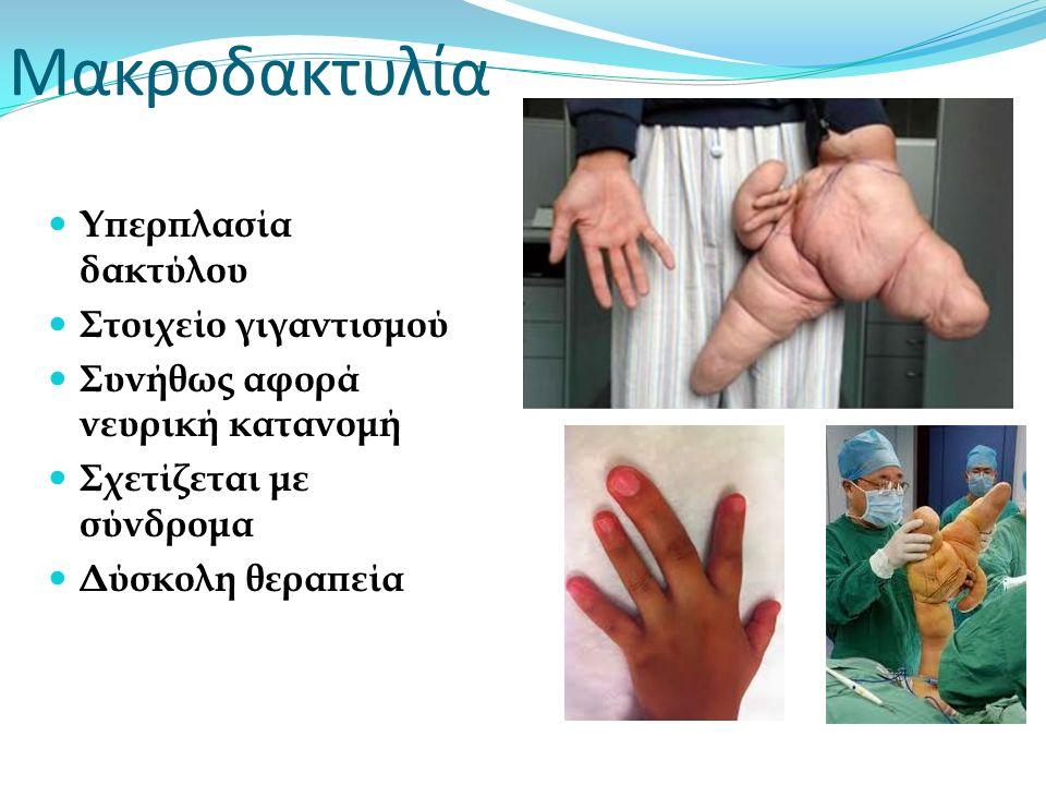 Μακροδακτυλία Υπερπλασία δακτύλου Στοιχείο γιγαντισμού Συνήθως αφορά νευρική κατανομή Σχετίζεται με σύνδρομα Δύσκολη θεραπεία