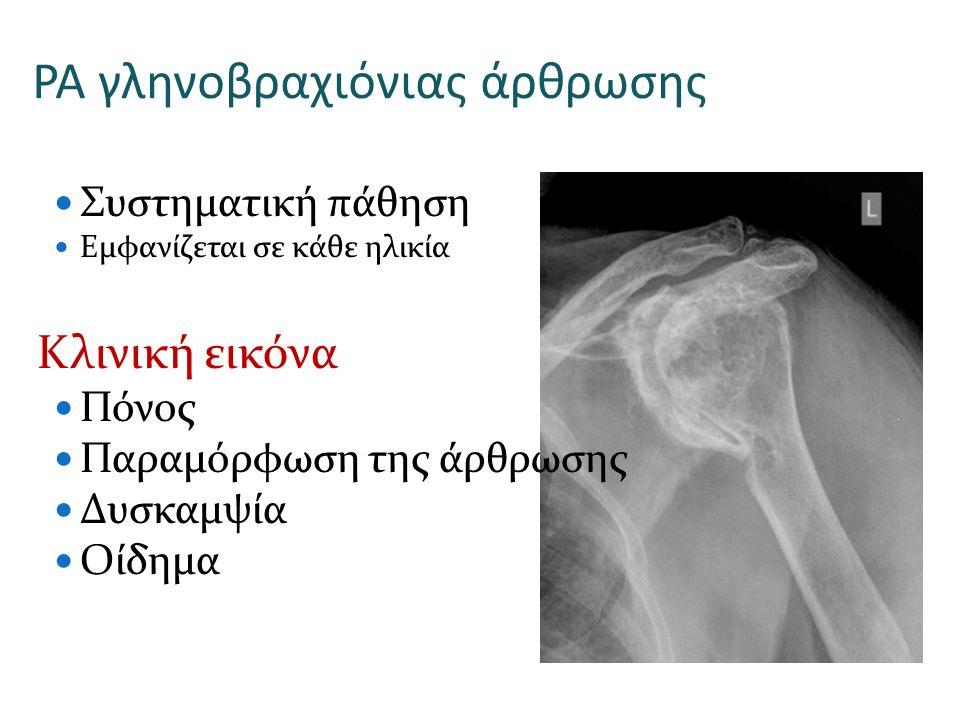 ΡΑ γληνοβραχιόνιας άρθρωσης Συστηματική πάθηση Εμφανίζεται σε κάθε ηλικία Κλινική εικόνα Πόνος Παραμόρφωση της άρθρωσης Δυσκαμψία Οίδημα