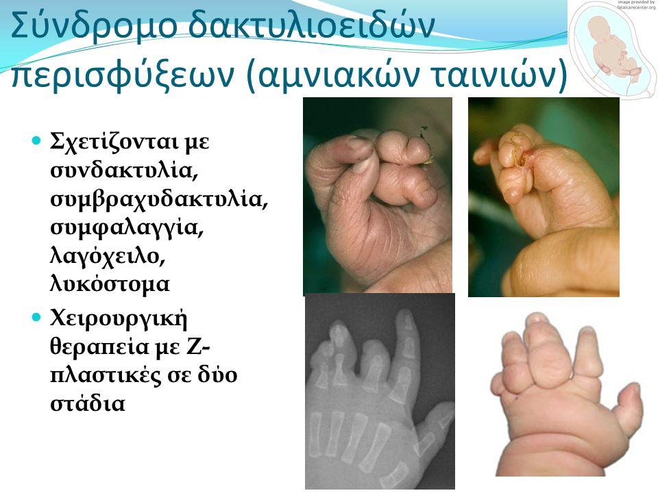 Σύνδρομο δακτυλιοειδών περισφύξεων (αμνιακών ταινιών) Σχετίζονται με συνδακτυλία, συμβραχυδακτυλία, συμφαλαγγία, λαγόχειλο, λυκόστομα Χειρουργική θερα