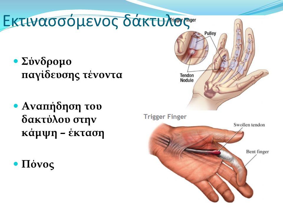 Εκτινασσόμενος δάκτυλος Σύνδρομο παγίδευσης τένοντα Αναπήδηση του δακτύλου στην κάμψη – έκταση Πόνος