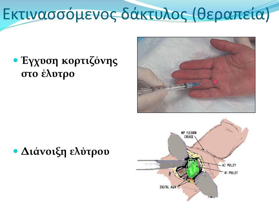 Εκτινασσόμενος δάκτυλος (θεραπεία) Έγχυση κορτιζόνης στο έλυτρο Διάνοιξη ελύτρου