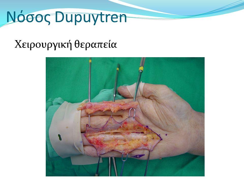 Νόσος Dupuytren Χειρουργική θεραπεία