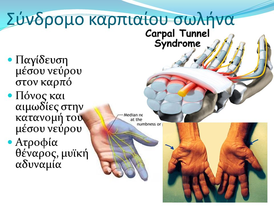 Σύνδρομο καρπιαίου σωλήνα Παγίδευση μέσου νεύρου στον καρπό Πόνος και αιμωδίες στην κατανομή του μέσου νεύρου Ατροφία θέναρος, μυϊκή αδυναμία