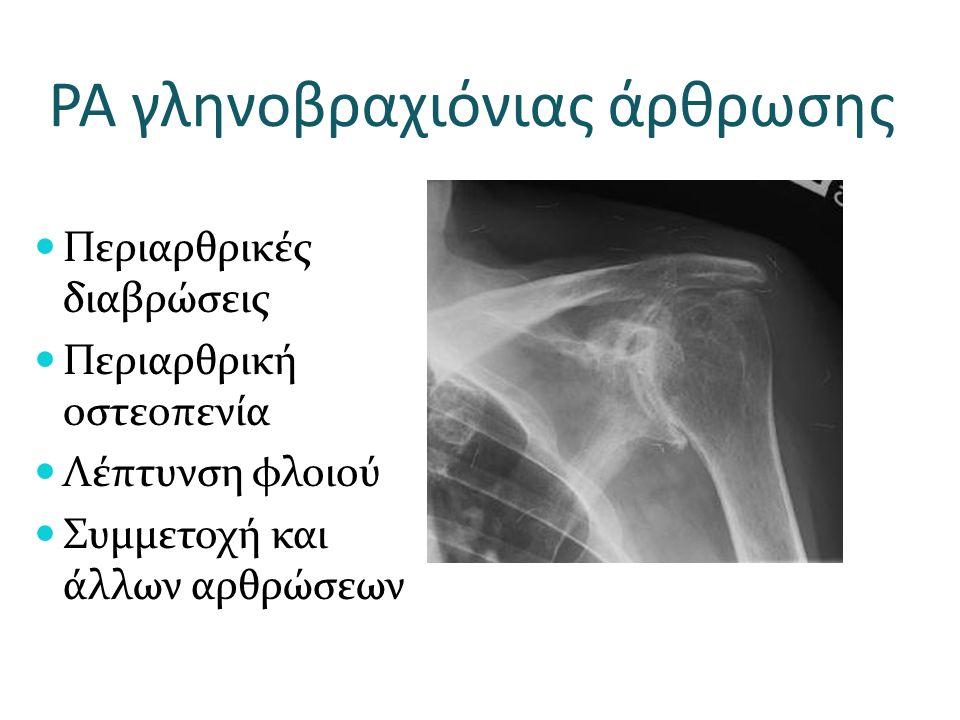 ΡΑ γληνοβραχιόνιας άρθρωσης Περιαρθρικές διαβρώσεις Περιαρθρική οστεοπενία Λέπτυνση φλοιού Συμμετοχή και άλλων αρθρώσεων