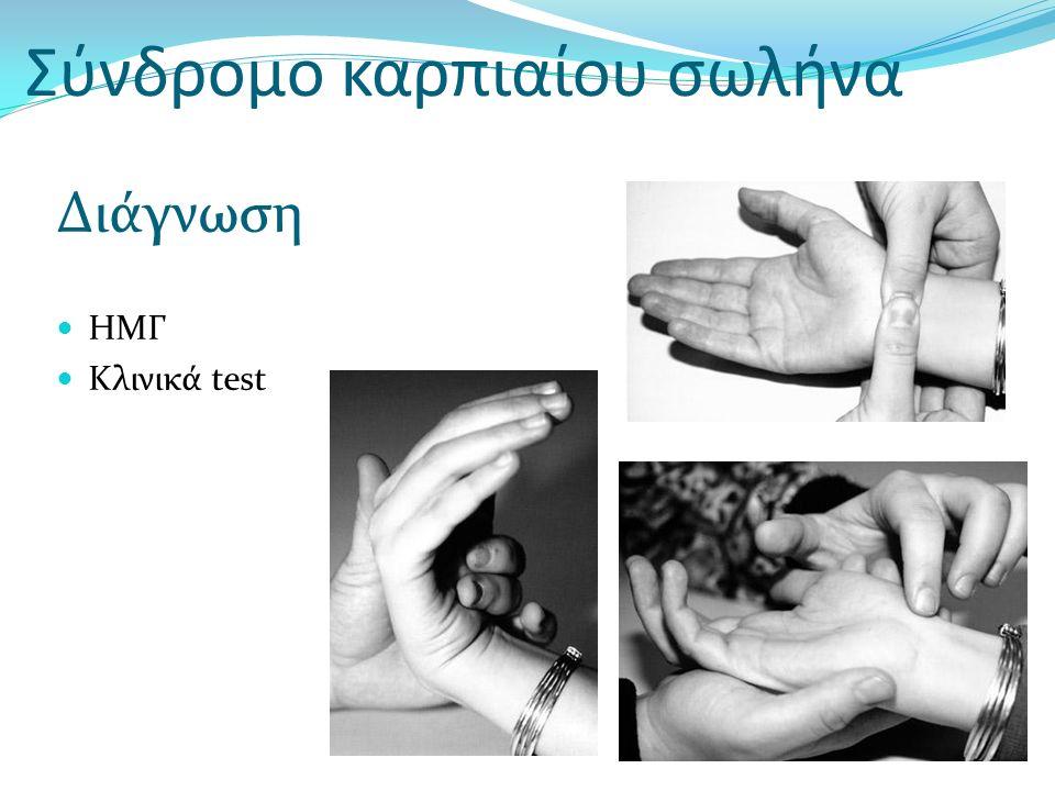 Σύνδρομο καρπιαίου σωλήνα Διάγνωση ΗΜΓ Κλινικά test