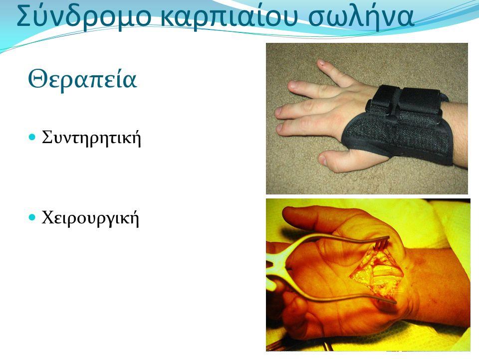 Σύνδρομο καρπιαίου σωλήνα Θεραπεία Συντηρητική Χειρουργική