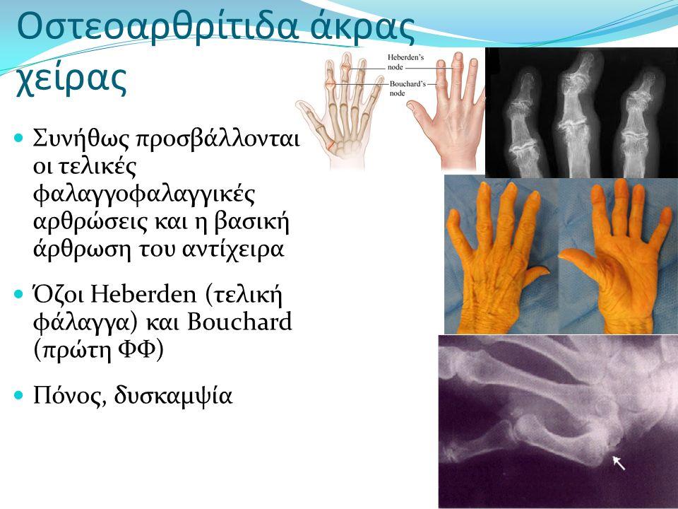 Οστεοαρθρίτιδα άκρας χείρας Συνήθως προσβάλλονται οι τελικές φαλαγγοφαλαγγικές αρθρώσεις και η βασική άρθρωση του αντίχειρα Όζοι Heberden (τελική φάλα