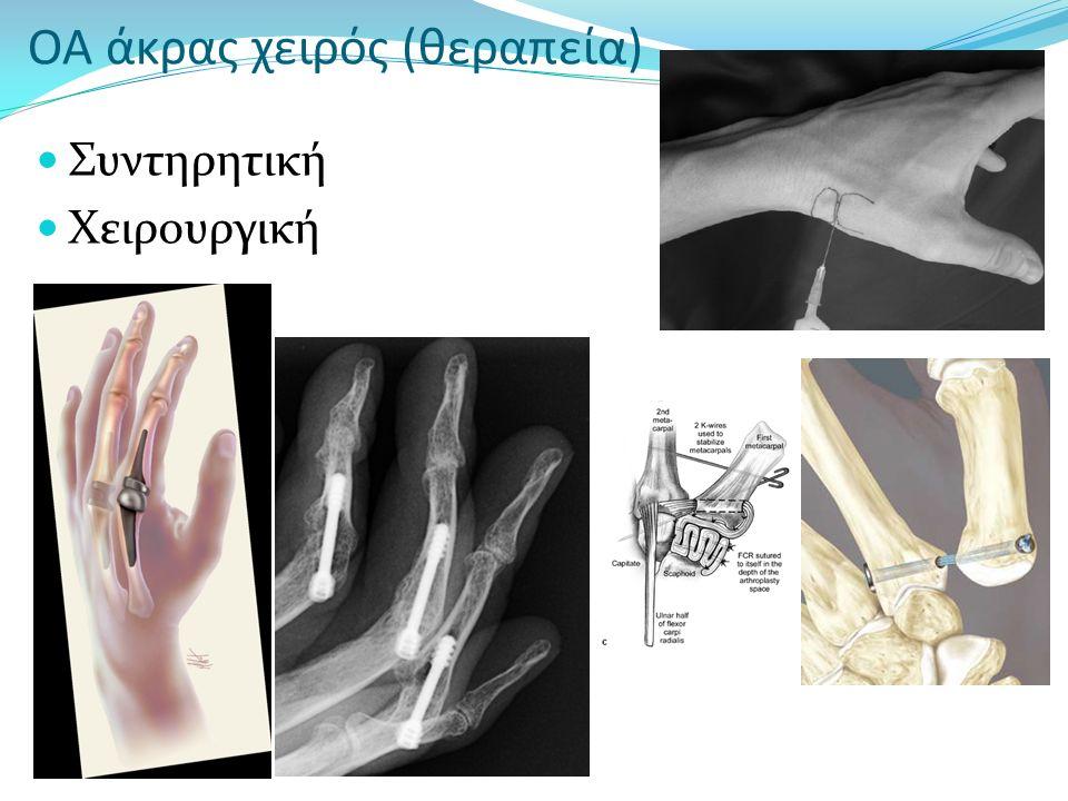 ΟΑ άκρας χειρός (θεραπεία) Συντηρητική Χειρουργική