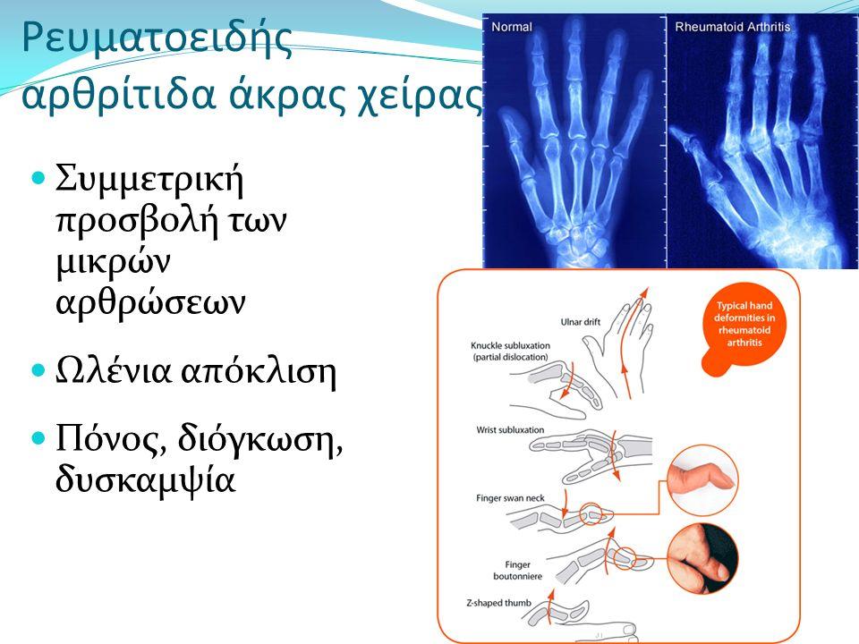 Ρευματοειδής αρθρίτιδα άκρας χείρας Συμμετρική προσβολή των μικρών αρθρώσεων Ωλένια απόκλιση Πόνος, διόγκωση, δυσκαμψία