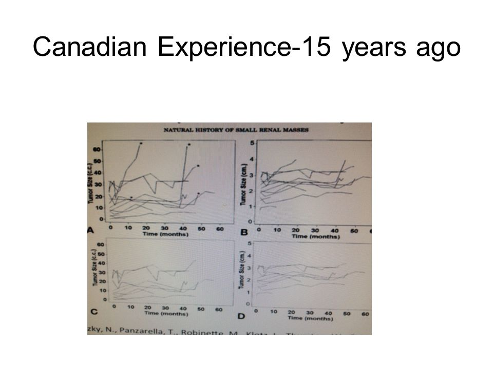 Canadian Experience-15 years ago