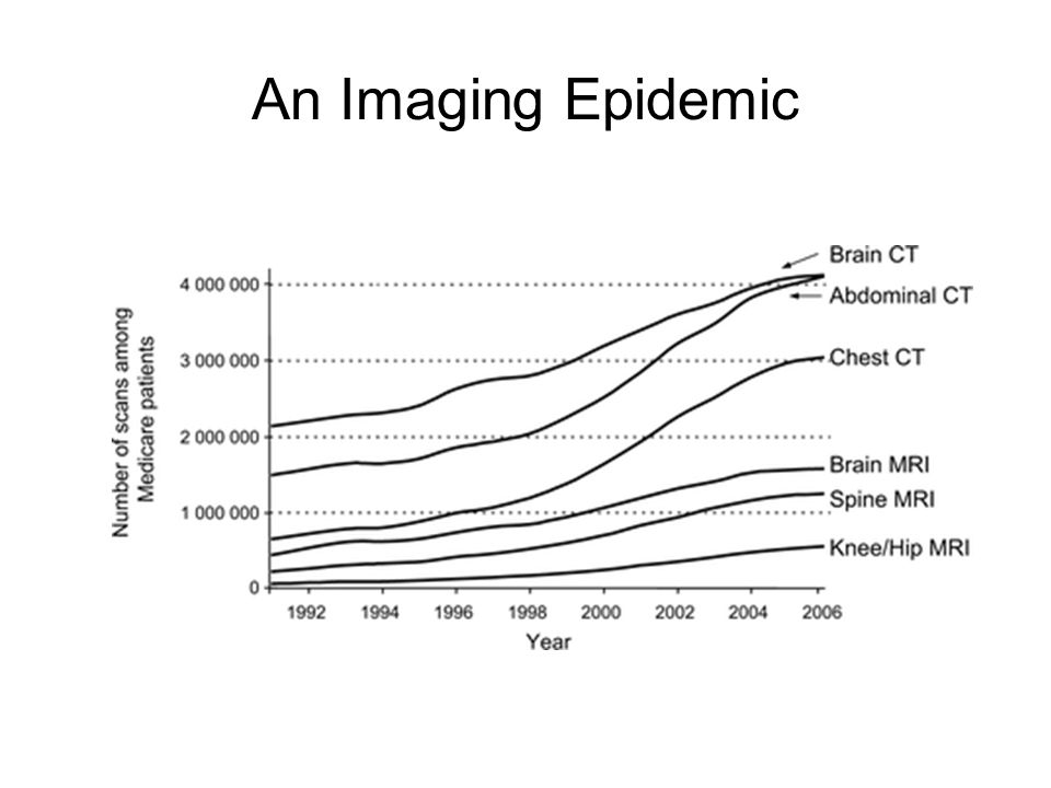 Incidence of RCC