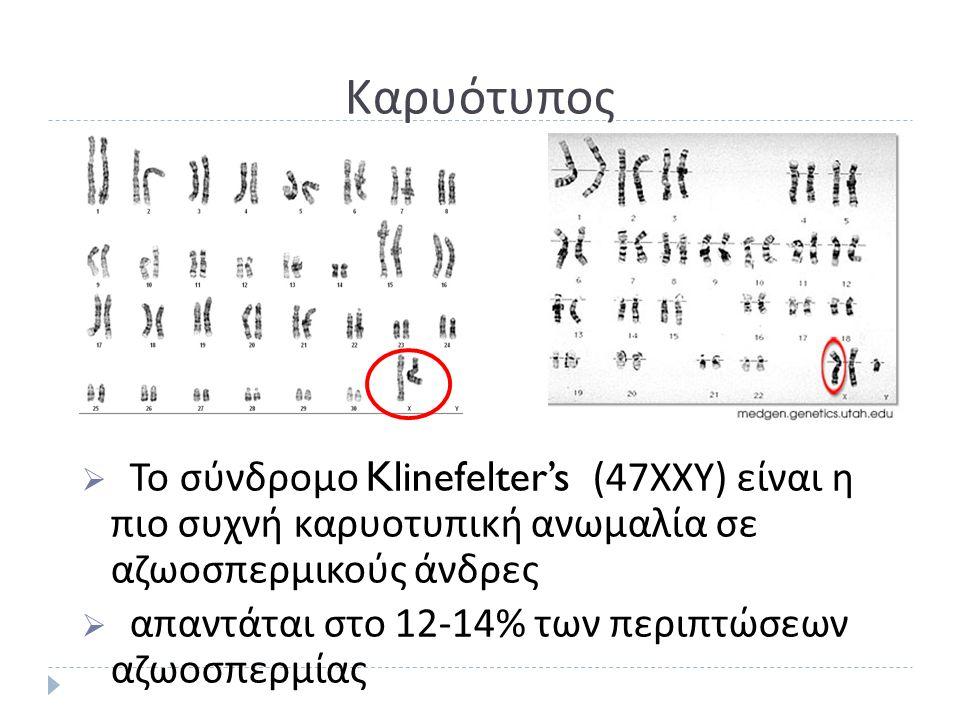 Καρυότυπος  Το σύνδρομο Klinefelter's (47 ΧΧΥ ) είναι η πιο συχνή καρυοτυπική ανωμαλία σε αζωοσπερμικούς άνδρες  απαντάται στο 12-14% των περιπτώσεων αζωοσπερμίας