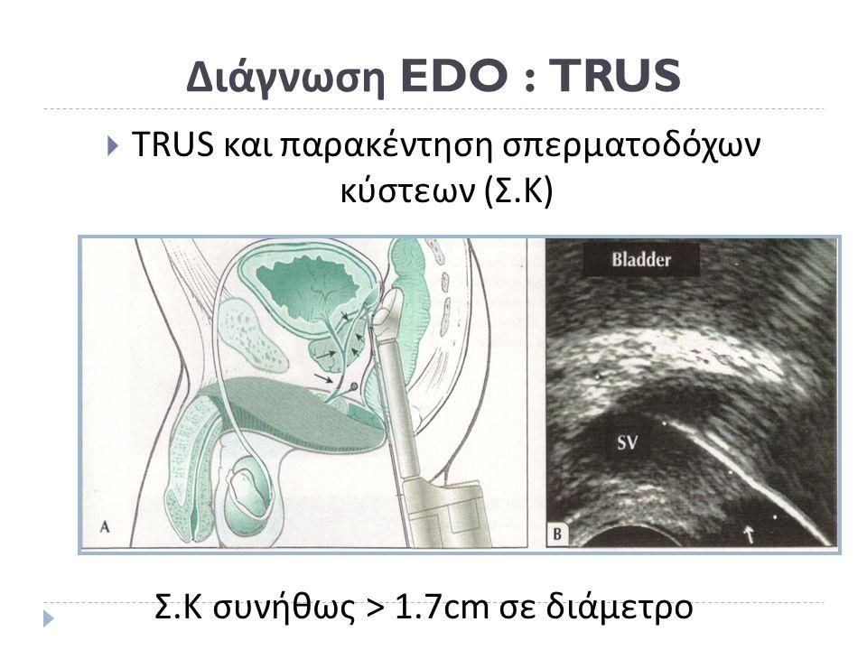 Διάγνωση EDO : TRUS  TRUS και παρακέντηση σπερματοδόχων κύστεων (Σ.Κ) Σ. Κ συνήθως > 1.7cm σε διάμετρο