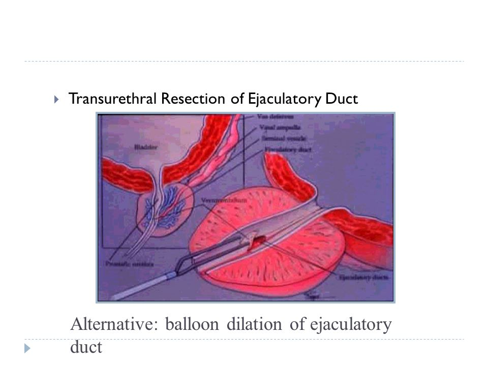 Transurethral Resection of Ejaculatory Duct Alternative: balloon dilation of ejaculatory duct