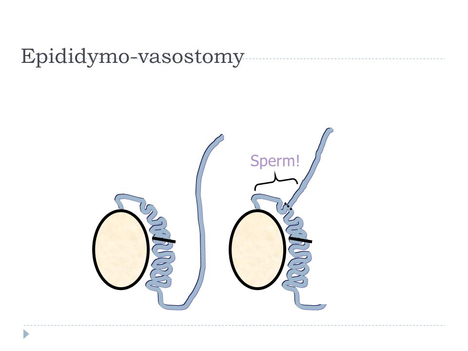 Epididymo-vasostomy Sperm!
