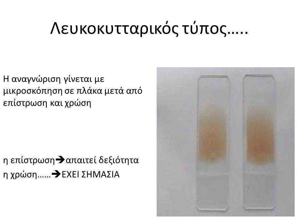 Λευκοκυτταρικός τύπος…..