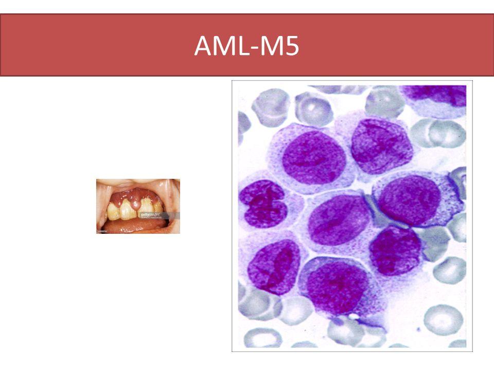 ΑΜL-M5