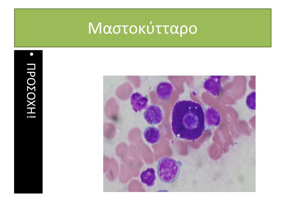 Μαστοκύτταρο ΠΡΟΣΟΧΗ!