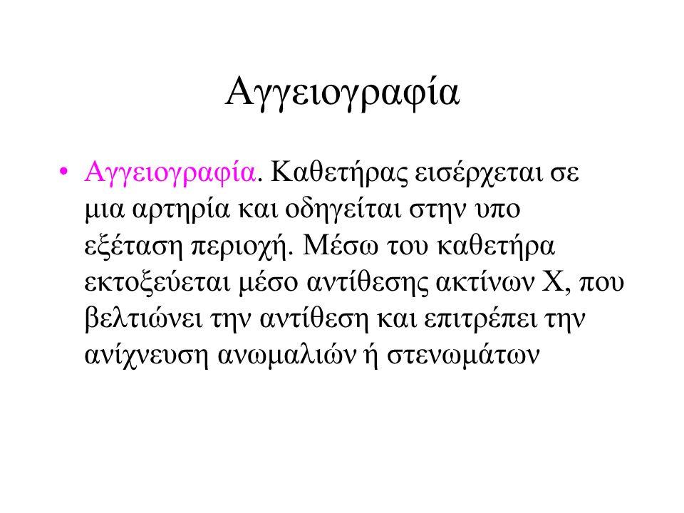 Αγγειογραφία Αγγειογραφία.