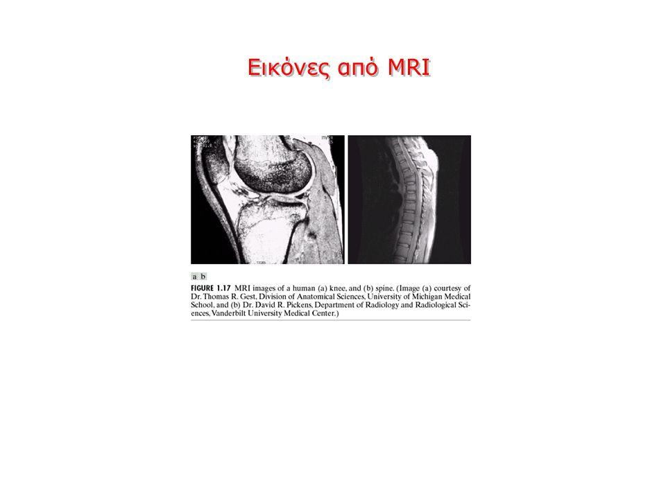 Εικόνες από MRI