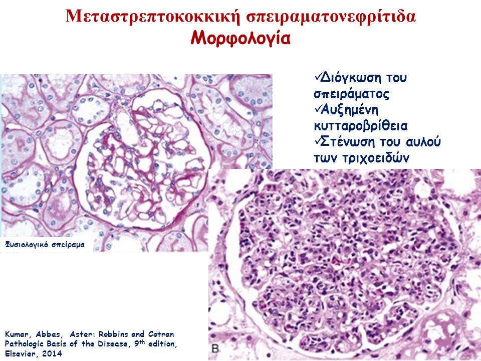 Μεταστρεπτοκοκκική σπειραματονεφρίτιδα Μορφολογία Kumar, Abbas, Aster: Robbins and Cotran Pathologic Basis of the Disease, 9 th edition, Elsevier, 2014 Φυσιολογικό σπείραμα Διόγκωση του σπειράματος Αυξημένη κυτταροβρίθεια Στένωση του αυλού των τριχοειδών