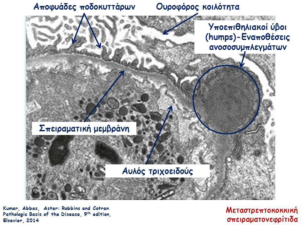 Kumar, Abbas, Aster: Robbins and Cotran Pathologic Basis of the Disease, 9 th edition, Elsevier, 2014 Αποφυάδες ποδοκυττάρωνΟυροφόρος κοιλότητα Σπειραματική μεμβράνη Υποεπιθηλιακοί ύβοι (humps)-Εναποθέσεις ανοσοσυμπλεγμάτων Αυλός τριχοειδούς Μεταστρεπτοκοκκική σπειραματονεφρίτιδα