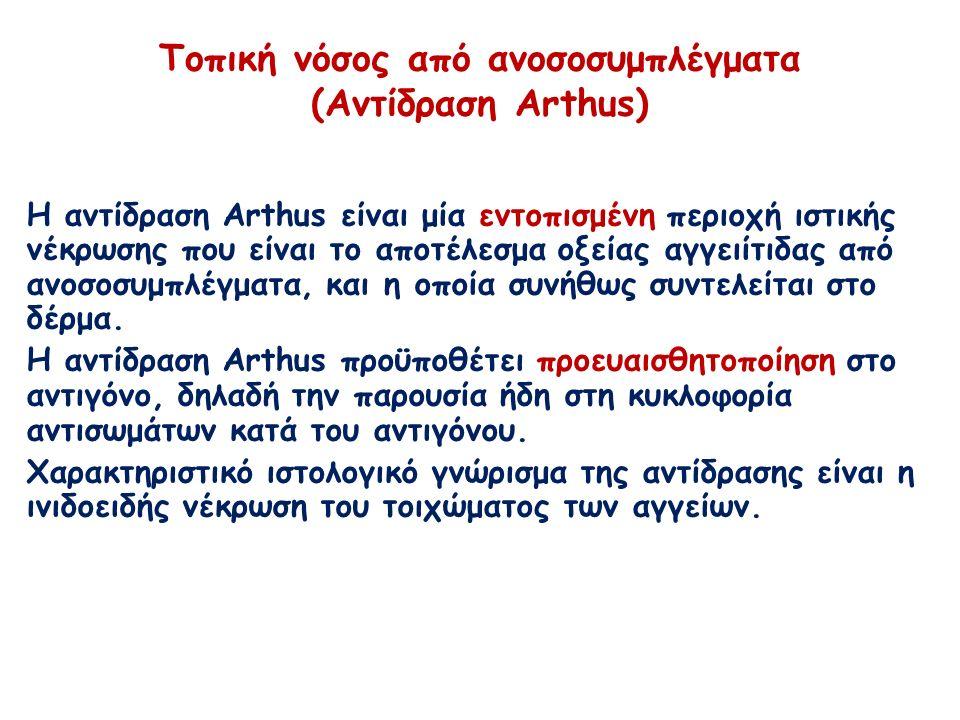 Τοπική νόσος από ανοσοσυμπλέγματα (Αντίδραση Arthus) Η αντίδραση Arthus είναι μία εντοπισμένη περιοχή ιστικής νέκρωσης που είναι το αποτέλεσμα οξείας αγγειίτιδας από ανοσοσυμπλέγματα, και η οποία συνήθως συντελείται στο δέρμα.
