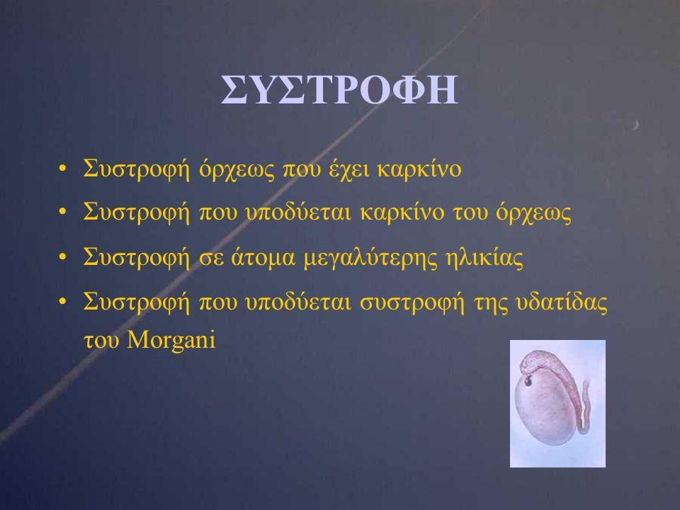 ΣΥΣΤΡΟΦΗ Συστροφή όρχεως που έχει καρκίνο Συστροφή που υποδύεται καρκίνο του όρχεως Συστροφή σε άτομα μεγαλύτερης ηλικίας Συστροφή που υποδύεται συστροφή της υδατίδας του Morgani